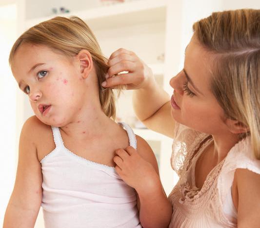 Bệnh thủy đậu ở trẻ em và cách điều trị